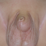 Typical appearance of congenital concealed penis. Touching the ballooned area squirts urine out of the foreskin